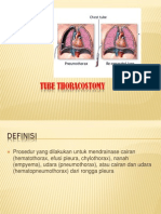 Chest Tube Thoracostomy