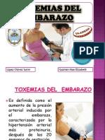 Toxeminas en El Embarazo