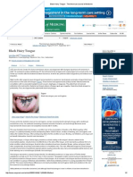 Black Hairy Tongue - The American Journal of Medicine