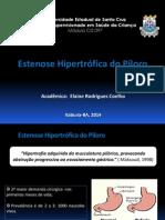 Estenose Hipertrófica Do Piloro