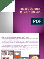 incrustacionesinlaysyonlays-131008192941-phpapp01