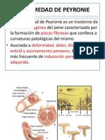 Enfermedad de Peroynie