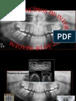 Princípios de Interpretação Radiográfica Abo 2014