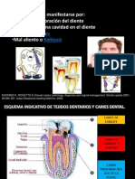 Caries Dental_vilma Mamani