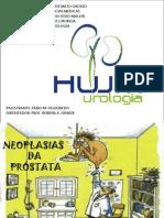 Neoplasias Da Próstata