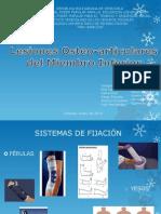 Fracturas Del Miembro Inferior.pptx [Autoguardado