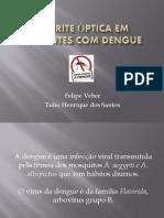 Neurite Óptica Em Pacientes Com Dengue