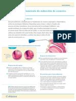 281-Turbinectomia Coblator