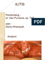 Tonsilofaringitis Denis