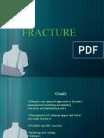 Powerpoin Fracture