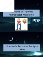 Hipertrofia Prostática Benigna (HPB), Cancer y Prostatitis