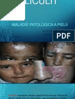 FOLICULITA-