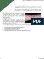 Penyakit Kulit Dermatitis