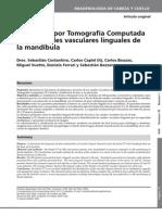 Valoración por Tomografía Computada de los canales vasculares linguales de la mandíbula