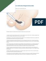 Remedios Caseros Contra Los Hongos de Las Uñas