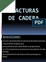 Clase - Fractura de Cadera