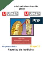 Artritis gotosa