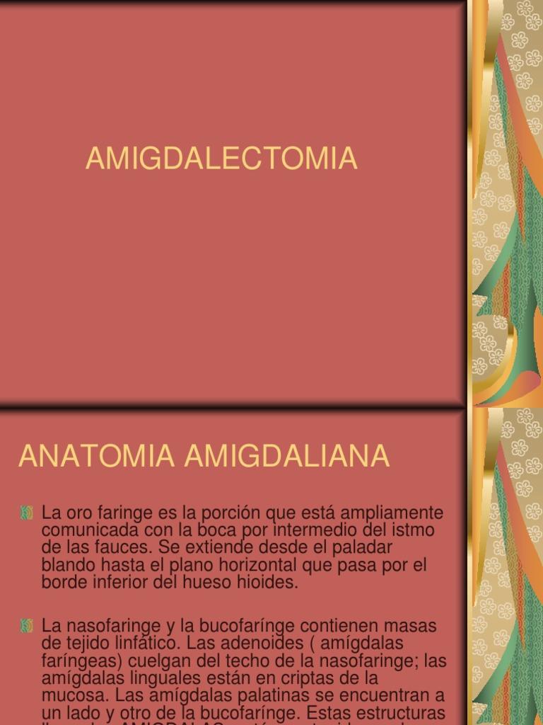 Amigdalectomía.ppt