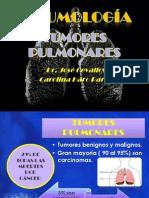 TUMORES PULMONARES.pptx