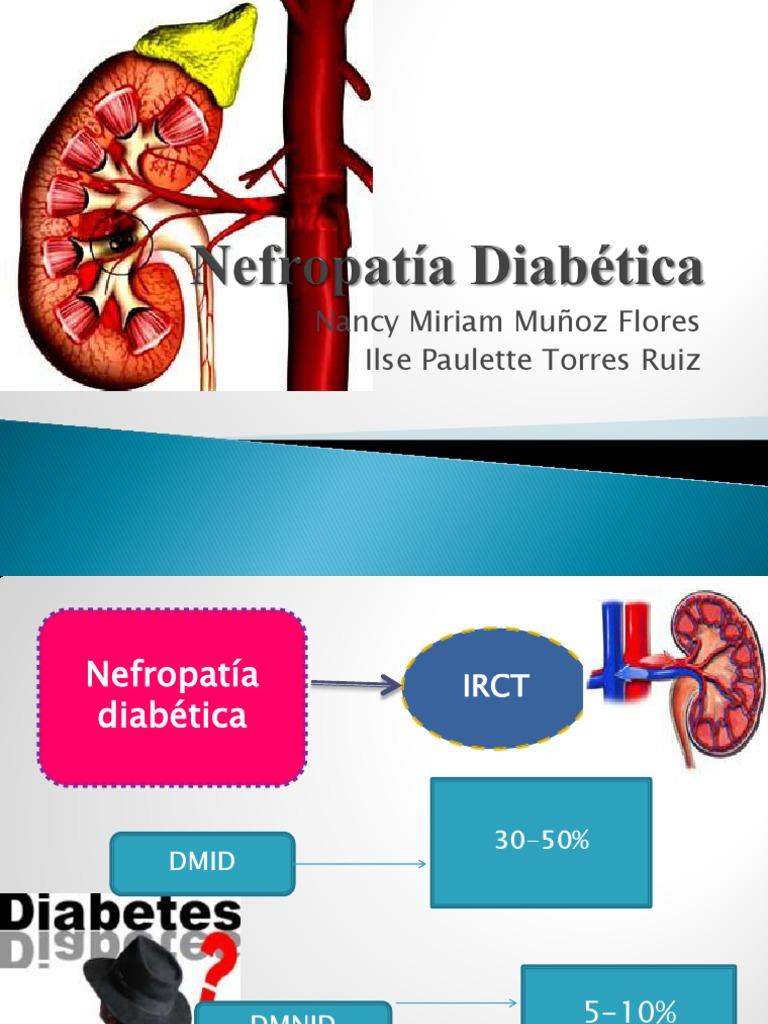 diabetes tipo 2 linkedin con obesidad en aumento