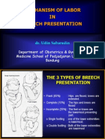 Mechanism of Labor in Breech Presentation