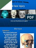 Mid Face Injury