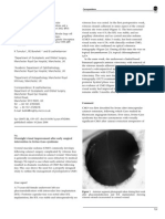 Eye Volume 21 Issue 1 2006 [Doi 10.1038%2Fsj.eye.6702467] Chavan, R; Shun-Shin, G a -- Overnight Visual Improvement After Early Surgical Intervention in Irvine–Gass Syndrome