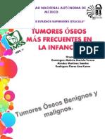 Tumores Oseos Mas Frecuentes en La Infancia!