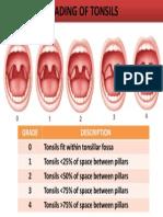 Grading of Tonsil