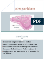 Hipoadrenocorticismo