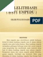 CHOLELITHIASIS ppt