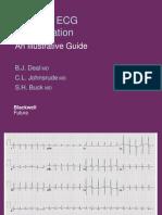 Atlas ECG PPT2