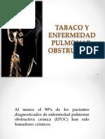 TABACO Y EPOC.pptx