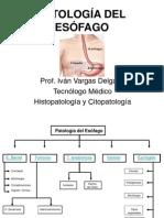 Patología Del Esófago