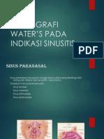Teknik Radiografi Water's Pada Indikasi Sinusitis