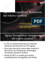 signostomogrficostempranosdelinfartocerebral-110213132952-phpapp02