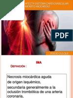 Infarto Agudo de Miocardio.rociO