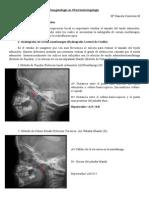 Imagenología en Otorrinolaringología