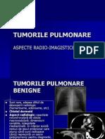 Curs Tumori Pulmonare (1)