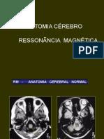 Anatomia Cerebral Rm Atual