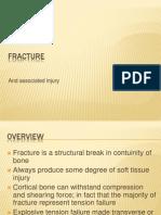 fracture.pptx
