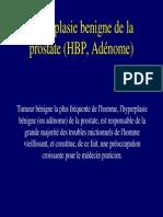 Hypertrophie Benigne Prostate