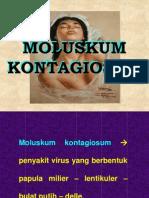 Moluskum-kontagiosum-asnawi