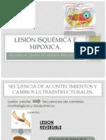 Lesion Isquemica e Hipoxica
