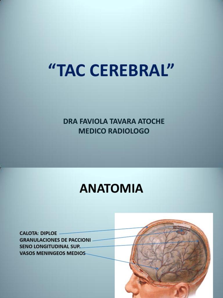Lujo Vasos Cerebrales Anatomía Molde - Imágenes de Anatomía Humana ...