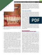 Implantes Dentais Contemporâneos
