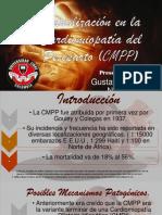 Actualización en La Cardiomiopatía Del Periparto (CMPP