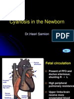 Cyanosis in the Newborn