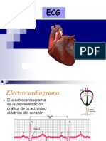 ARTI2 ECG Arritmias