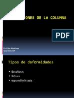 deformidades Columna